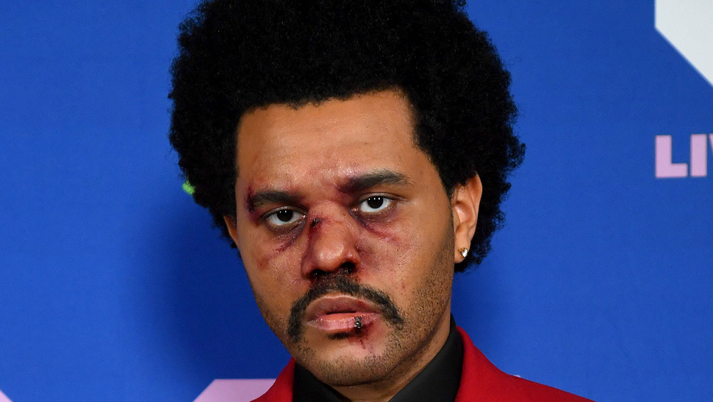 The Weeknd with a bruised face