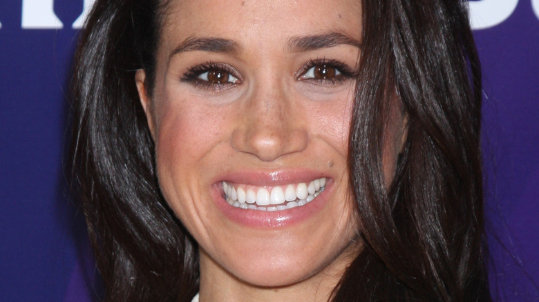 Meghan Markle teeth